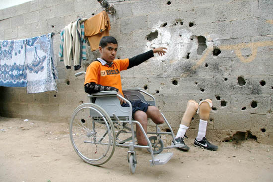 Ghassan Mattar, a Palestinian boy, who lost his legs during an Israeli attack…. Marked for life