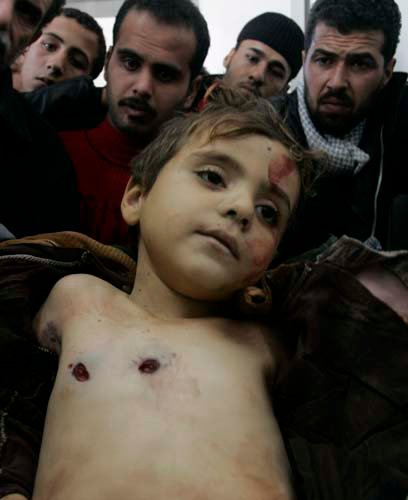 When this picture was shown in media, even the news read of AlJazeera cried… live on television… The whole world should for the insanity of Israel and it's crimes is going on every day